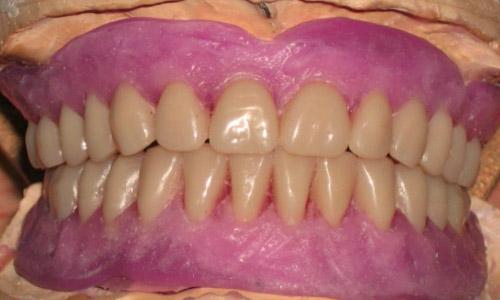 FP Prótesis Dentales